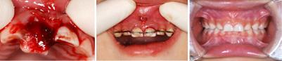 乳歯根の歯折(はせつ)4歳男児
