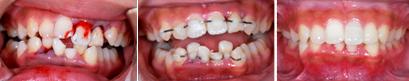 永久歯冠・歯根の歯折(はせつ)12歳女子